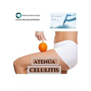Sesión Tratamiento Anticelulitis
